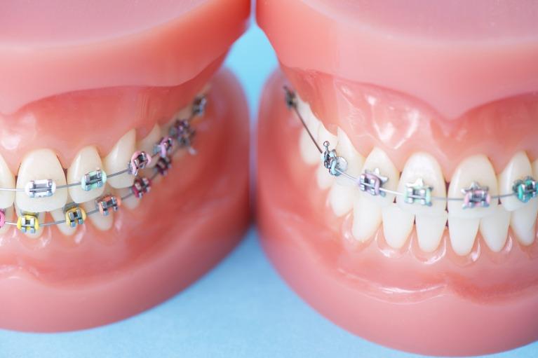 患者様のお口の状態・治療時期に合わせた矯正歯科