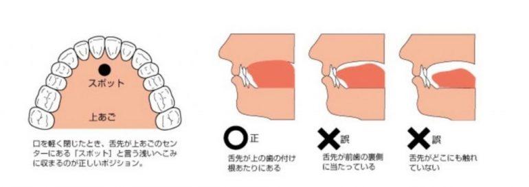 低位舌 舌 舌の正しい位置