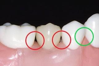 歯周病 歯間ブラシ フロス