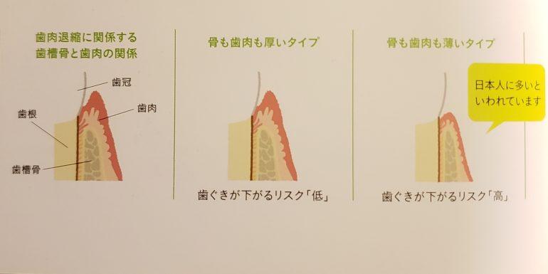 歯肉のタイプ