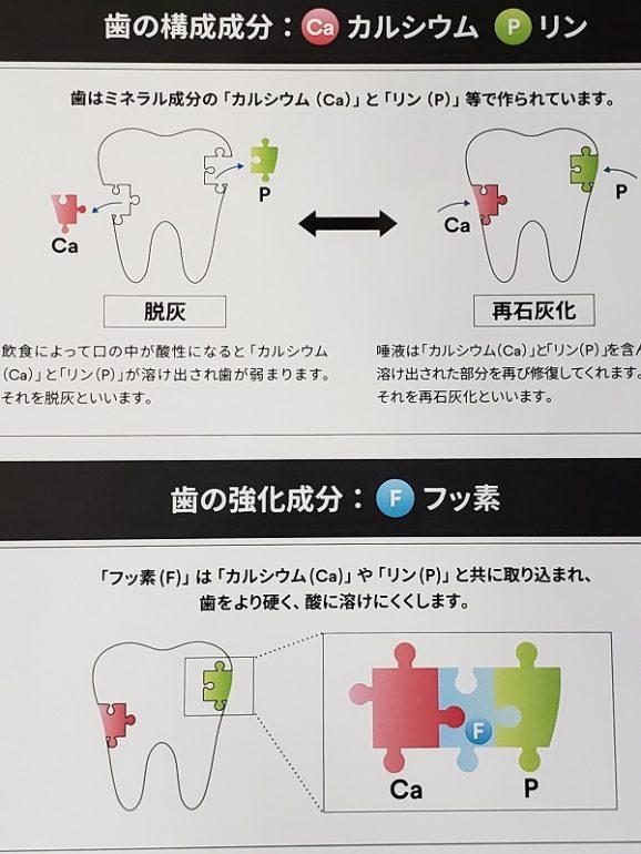 3M クリンプロ(歯みがきペースト)F1450 芦屋川聖栄歯科医院・矯正歯科