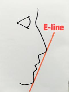 E-line(イーライン)