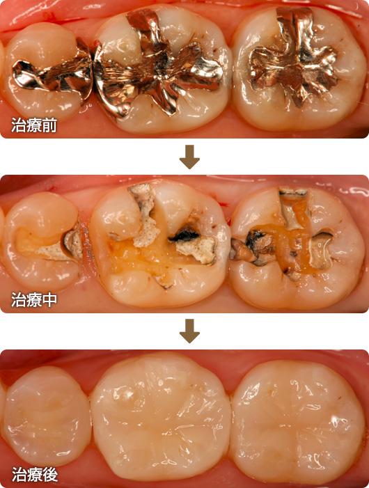 2次カリエス 銀歯の下が虫歯