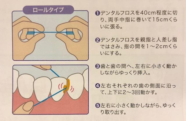 歯ブラシ交換 口腔メンテナンス歯ブラシ 歯間ブラシ 芦屋川聖栄歯科医院・矯正歯科