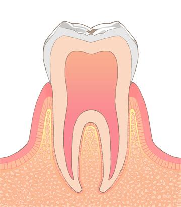 初期むし歯(CO シーオー)