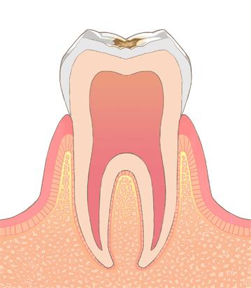 エナメル質のむし歯(C1 シーワン)