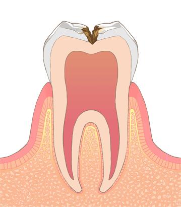 象牙質まで進んだむし歯(C2 シーツー)