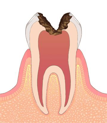 神経まで進んだむし歯(C3 シースリー)
