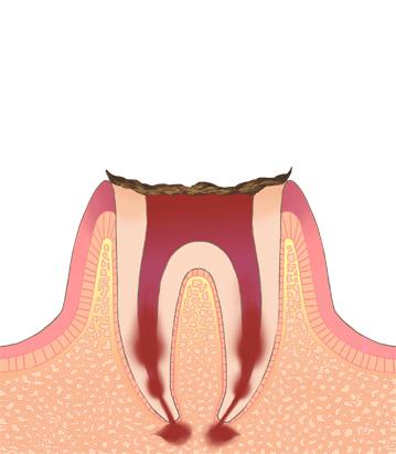 歯根だけ残ったむし歯(C4 シーフォー)