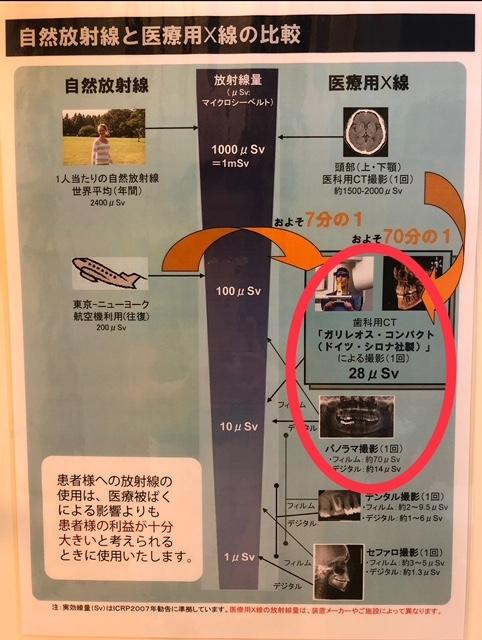 レントゲン 芦屋川聖栄歯科医院・矯正歯科