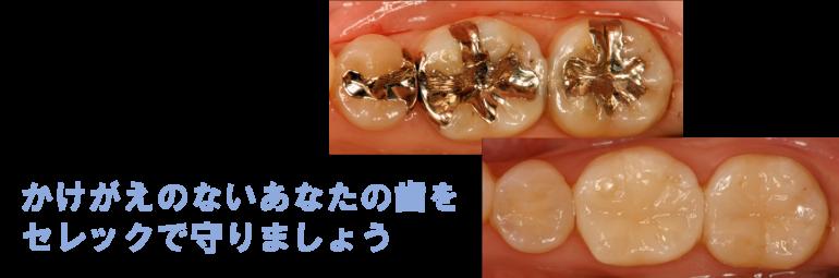 芦屋川聖栄歯科医院・矯正歯科 セレック セラミック治療