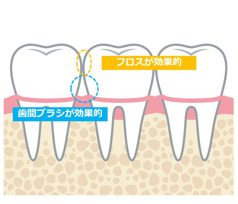 フロスが効果的 歯間ブラシが効果的