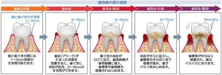 歯周病の進行過程
