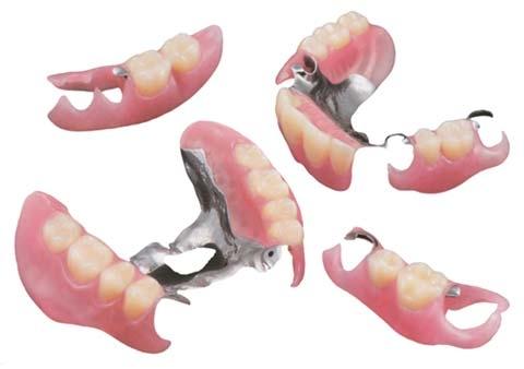 歯科技工士 部分入れ歯 入れ歯 ノンクラスプデンチャー