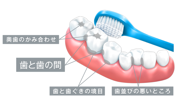 歯磨き 歯みがき 歯の磨き残し